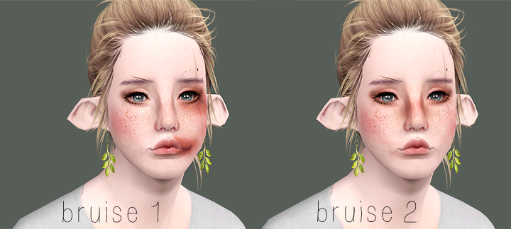 Bruises by Hisuily
