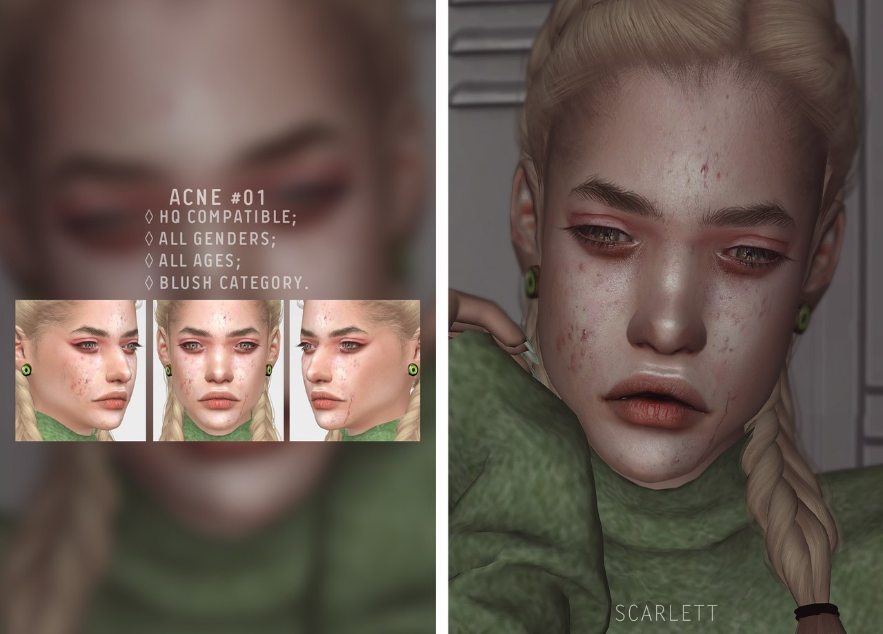 Acne #01 by Scarlett-content