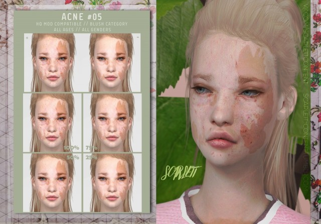 ACNE #05 by Scarlett